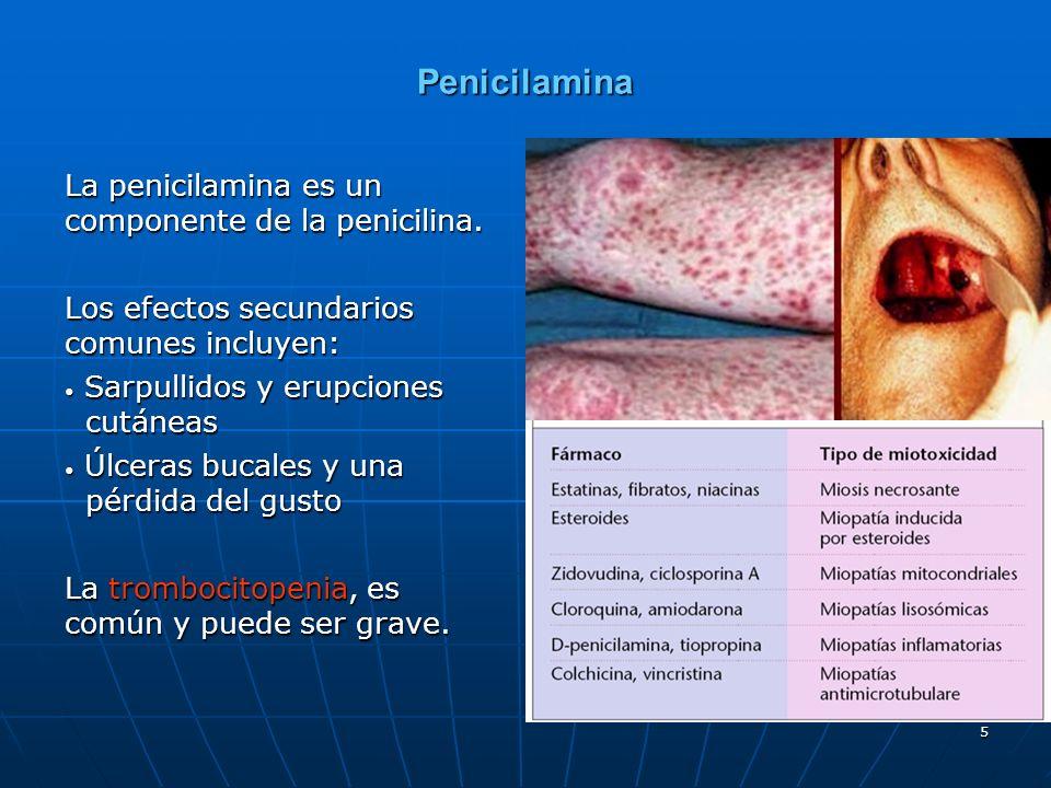 5 Penicilamina La penicilamina es un componente de la penicilina. Los efectos secundarios comunes incluyen: Sarpullidos y erupciones cutáneas Sarpulli