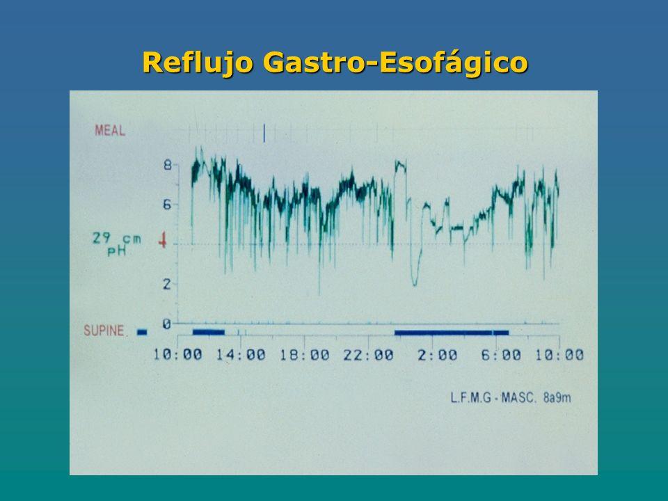 Reflujo Gastro-Esofágico