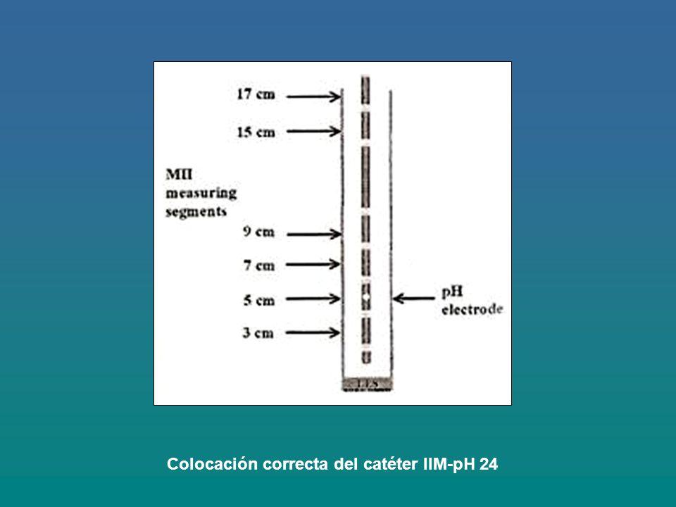 Colocación correcta del catéter IIM-pH 24