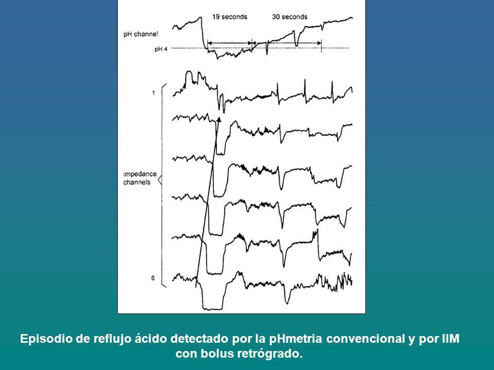 Episodio de reflujo ácido detectado por la pHmetria convencional y por IIM con bolus retrógrado.
