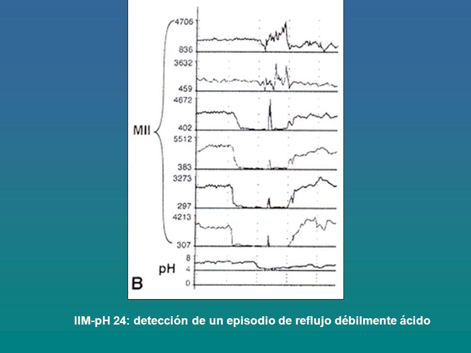 IIM-pH 24: detección de un episodio de reflujo débilmente ácido