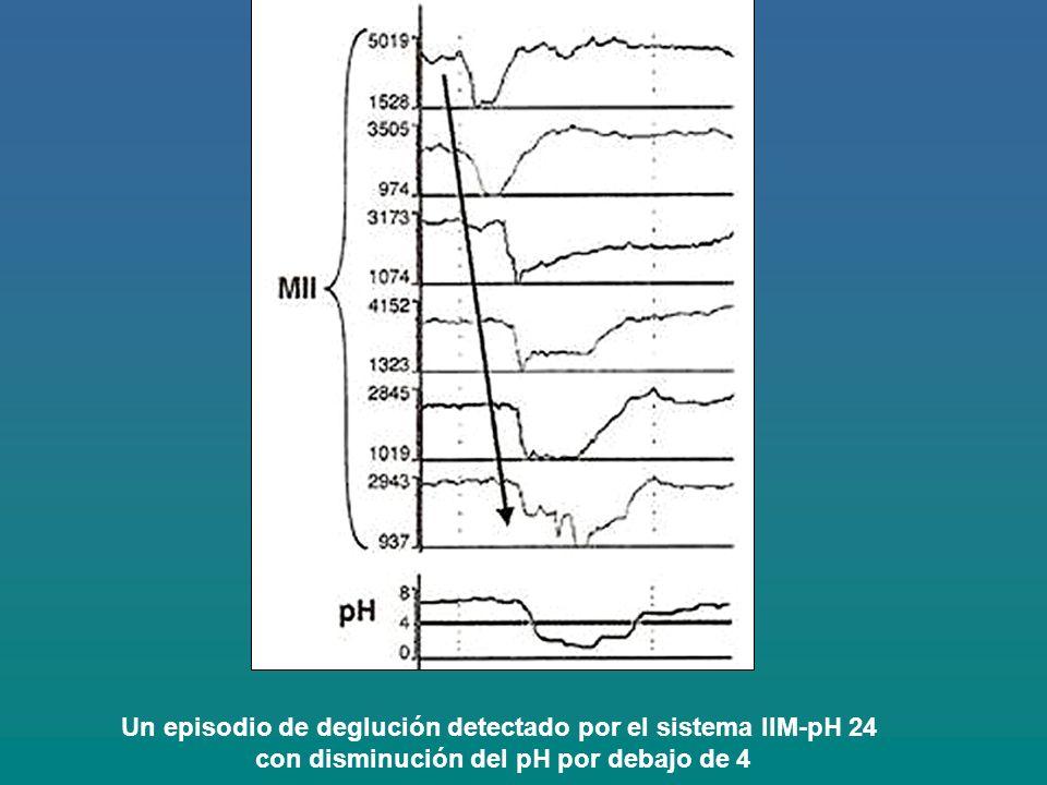 Un episodio de deglución detectado por el sistema IIM-pH 24 con disminución del pH por debajo de 4
