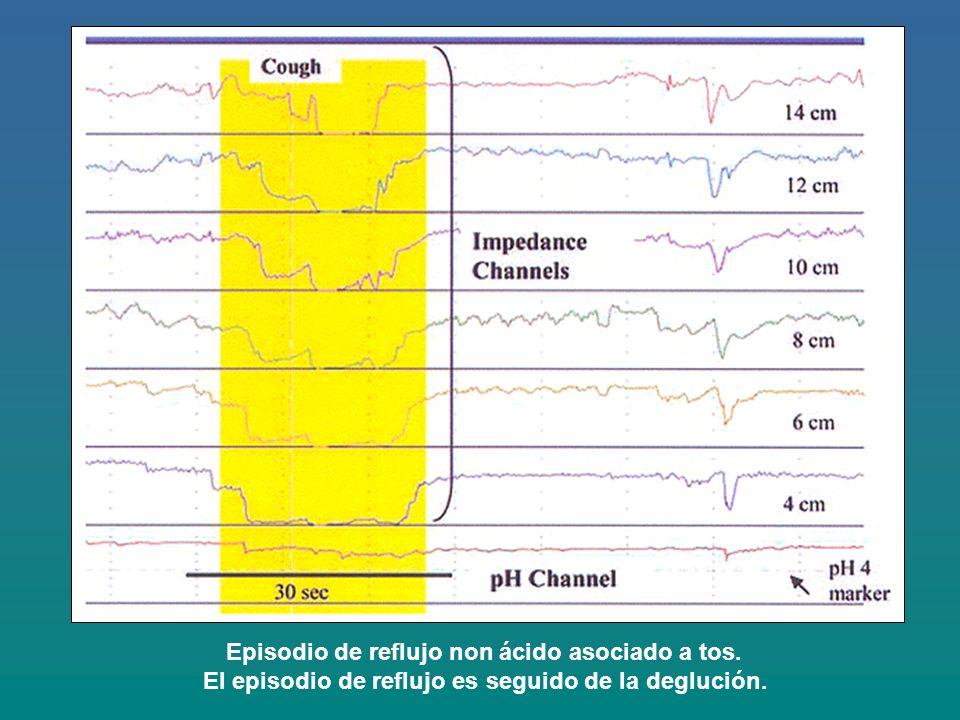 Episodio de reflujo non ácido asociado a tos. El episodio de reflujo es seguido de la deglución.