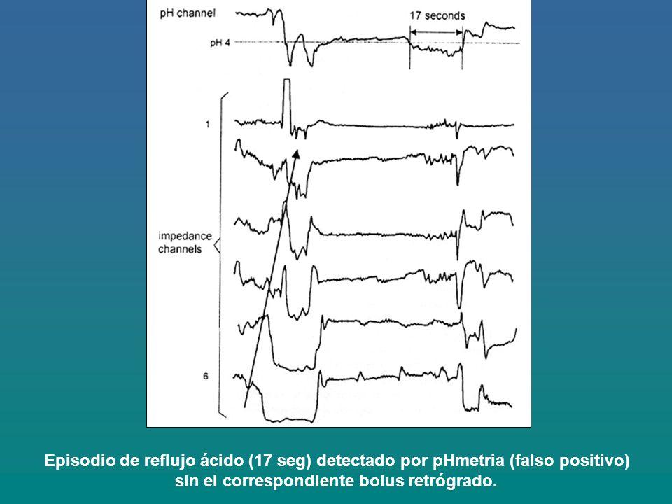 Episodio de reflujo ácido (17 seg) detectado por pHmetria (falso positivo) sin el correspondiente bolus retrógrado.