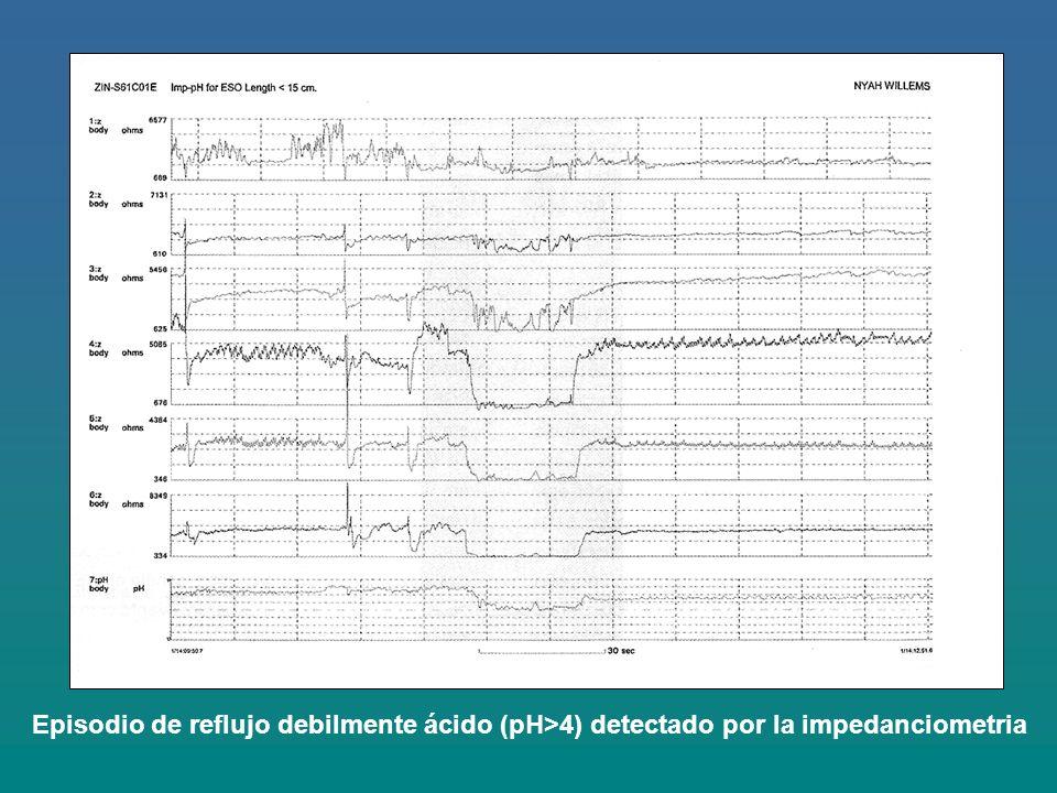 Episodio de reflujo debilmente ácido (pH>4) detectado por la impedanciometria
