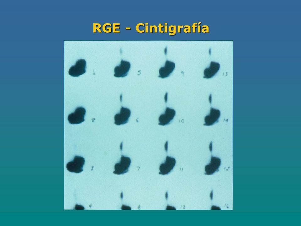 RGE - Cintigrafía