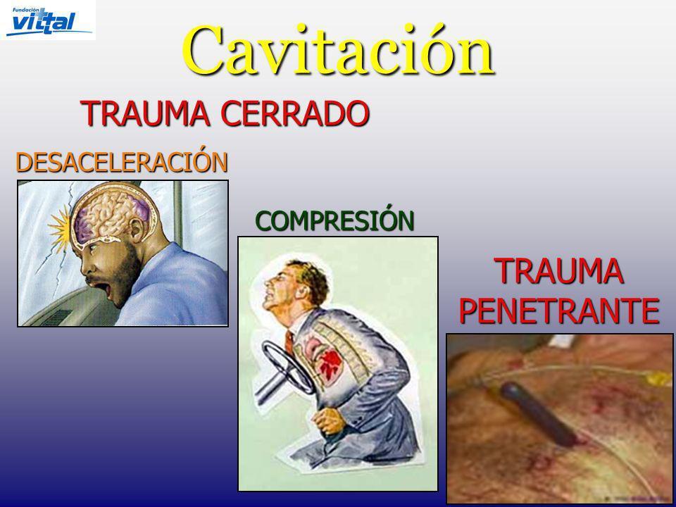 Cavitación TRAUMA CERRADO COMPRESIÓN DESACELERACIÓN TRAUMA PENETRANTE