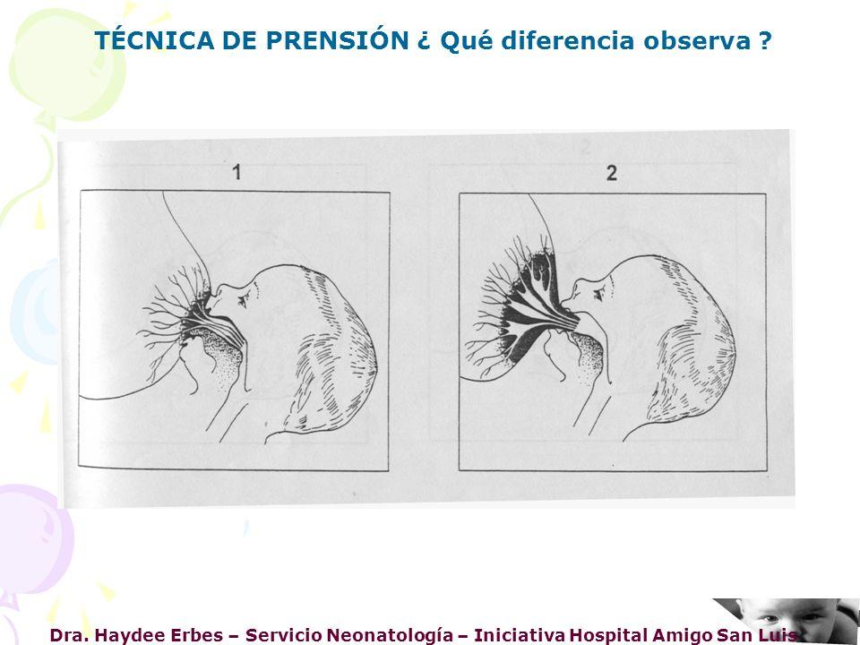 Dra. Haydee Erbes – Servicio Neonatología – Iniciativa Hospital Amigo San Luis TÉCNICA DE PRENSIÓN ¿ Qué diferencia observa ?