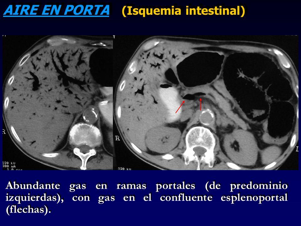 AIRE EN PORTA (Isquemia intestinal) Abundante gas en ramas portales (de predominio izquierdas), con gas en el confluente esplenoportal (flechas).