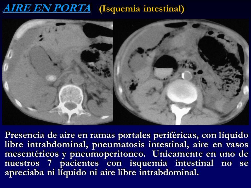 AIRE EN PORTA (Isquemia intestinal) Presencia de aire en ramas portales periféricas, con líquido libre intrabdominal, pneumatosis intestinal, aire en