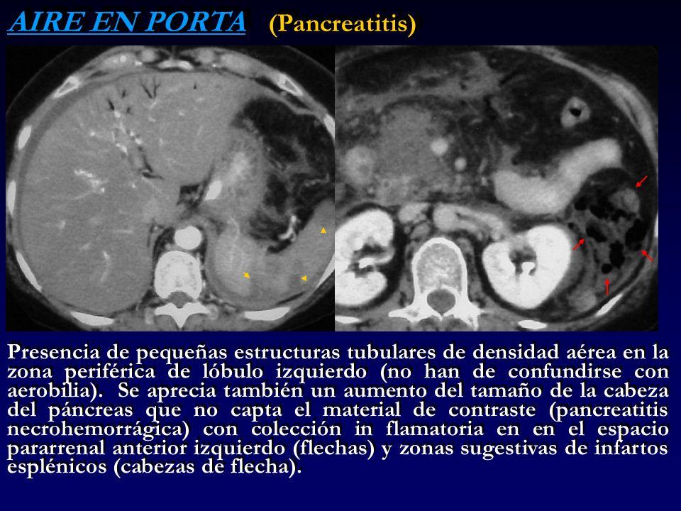 AIRE EN PORTA (Pancreatitis) Presencia de pequeñas estructuras tubulares de densidad aérea en la zona periférica de lóbulo izquierdo (no han de confun