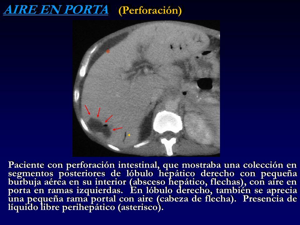 AIRE EN PORTA (Perforación) Paciente con perforación intestinal, que mostraba una colección en segmentos posteriores de lóbulo hepático derecho con pe