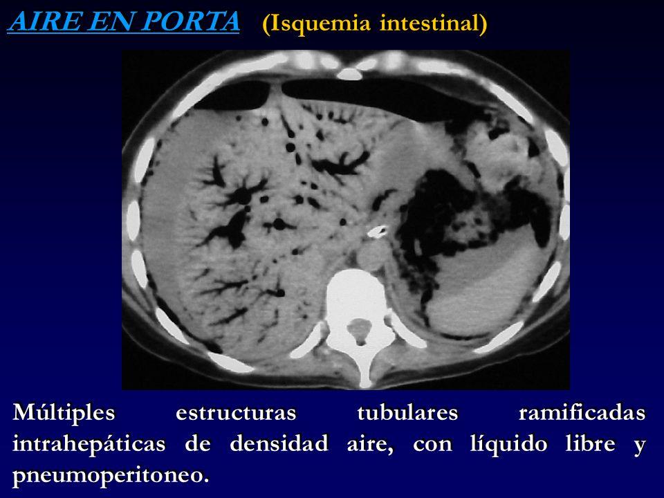 AIRE EN PORTA (Isquemia intestinal) Múltiples estructuras tubulares ramificadas intrahepáticas de densidad aire, con líquido libre y pneumoperitoneo.
