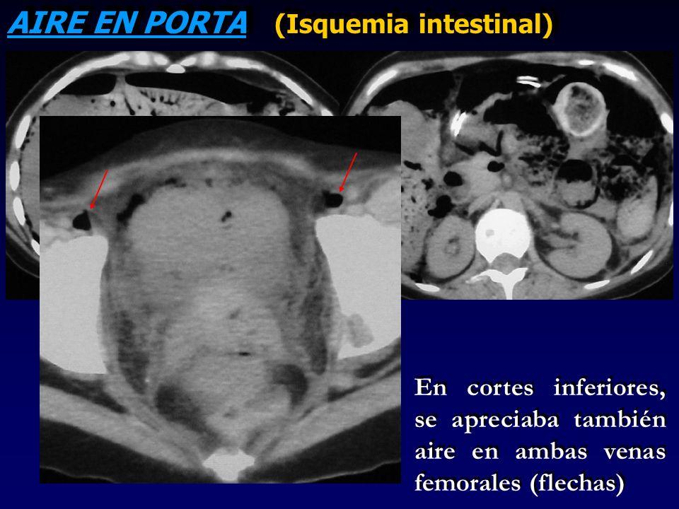 AIRE EN PORTA (Isquemia intestinal) En cortes inferiores, se apreciaba también aire en ambas venas femorales (flechas)