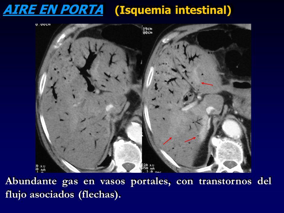 AIRE EN PORTA (Isquemia intestinal) Abundante gas en vasos portales, con transtornos del flujo asociados (flechas).