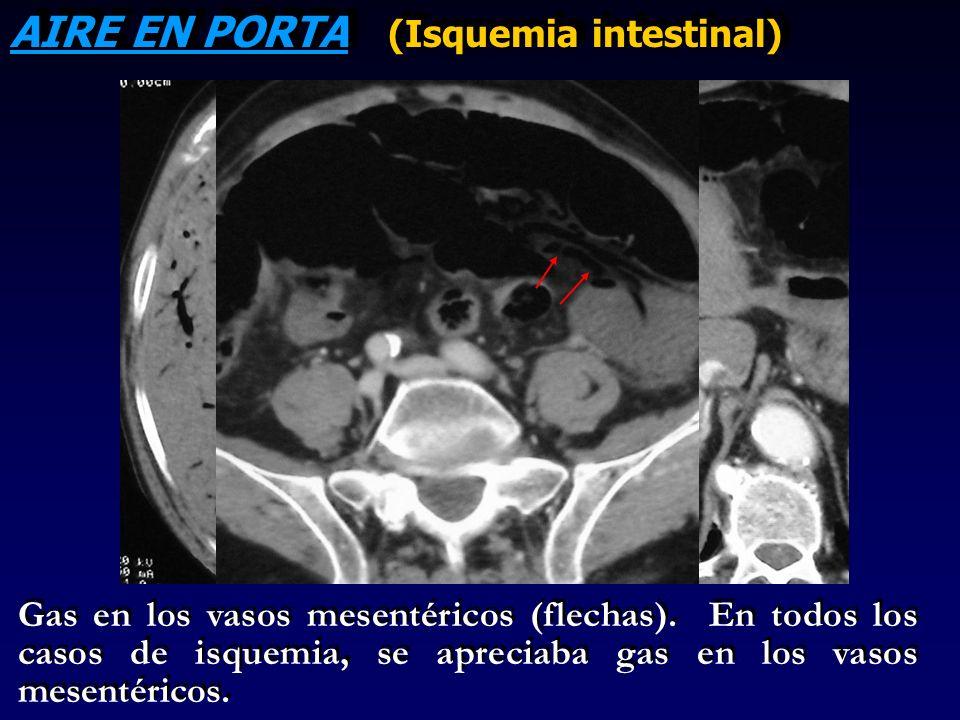 AIRE EN PORTA (Isquemia intestinal) Gas en los vasos mesentéricos (flechas). En todos los casos de isquemia, se apreciaba gas en los vasos mesentérico