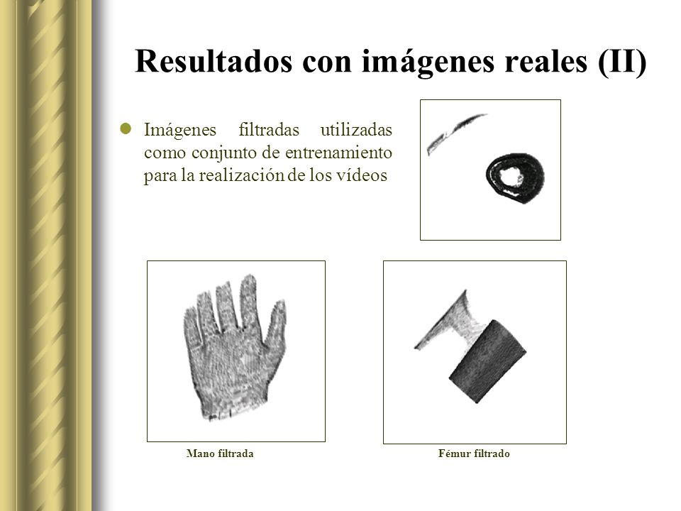 Resultados con imágenes reales (II) Imágenes filtradas utilizadas como conjunto de entrenamiento para la realización de los vídeos Mano filtradaFémur filtrado
