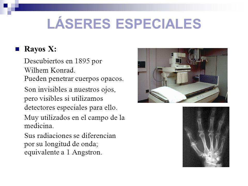 LÁSERES ESPECIALES Rayos X: Descubiertos en 1895 por Wilhem Konrad. Pueden penetrar cuerpos opacos. Son invisibles a nuestros ojos, pero visibles si u