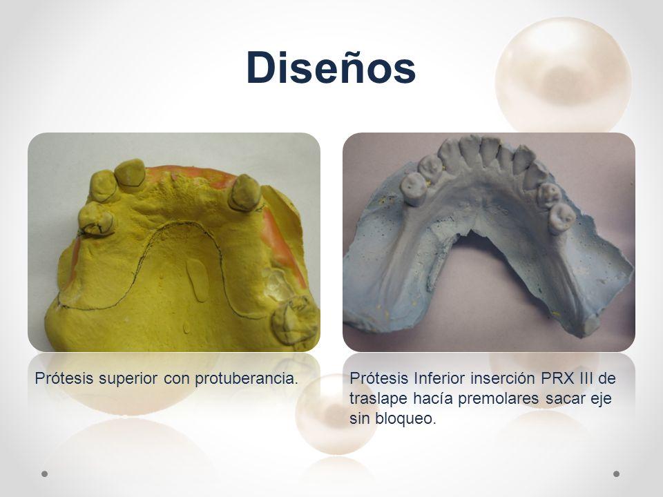 Diseños Prótesis Inferior inserción PRX III de traslape hacía premolares sacar eje sin bloqueo. Prótesis superior con protuberancia.