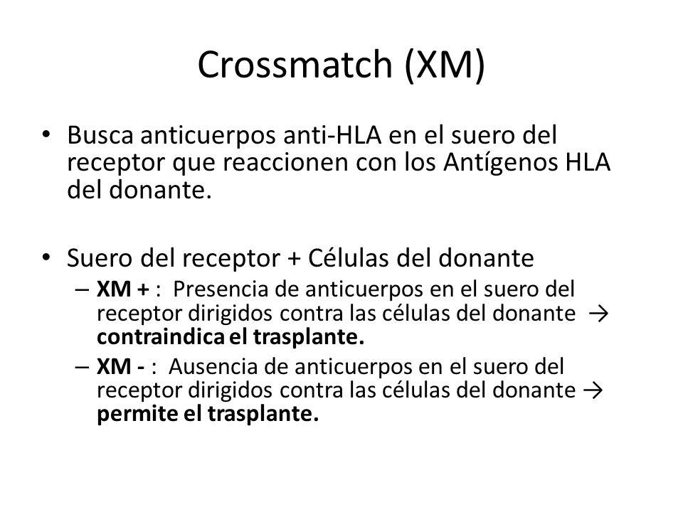 Crossmatch (XM) Busca anticuerpos anti-HLA en el suero del receptor que reaccionen con los Antígenos HLA del donante. Suero del receptor + Células del
