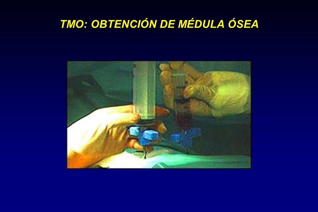 TRASPLANTE DE CPH DE SANGRE PERIFÉRICA Estimulación Movilización Recolección Con FEC de MO a S.P.