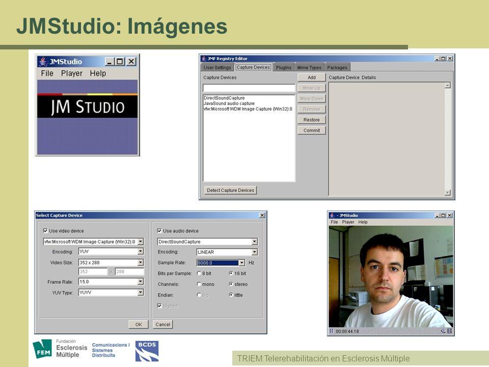 TRIEM:Telerehabilitación en Esclerosis Múltiple JMStudio: Imágenes