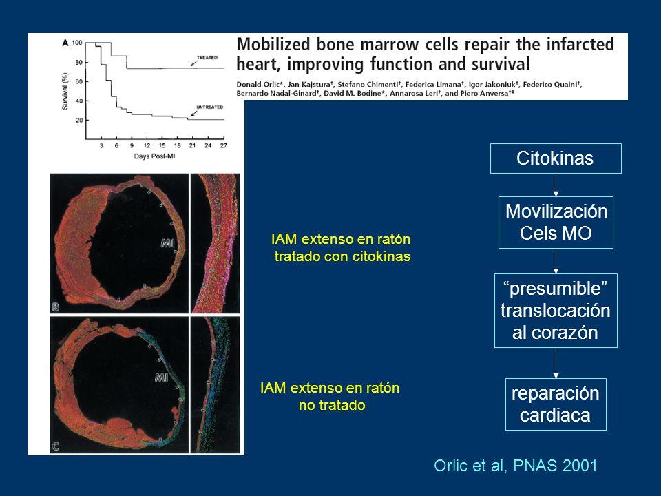 Orlic et al, PNAS 2001 IAM extenso en ratón tratado con citokinas IAM extenso en ratón no tratado Citokinas Movilización Cels MO presumible translocac