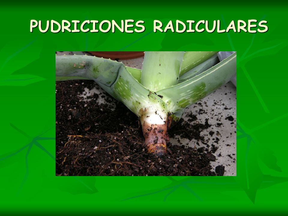 PUDRICIONES RADICULARES