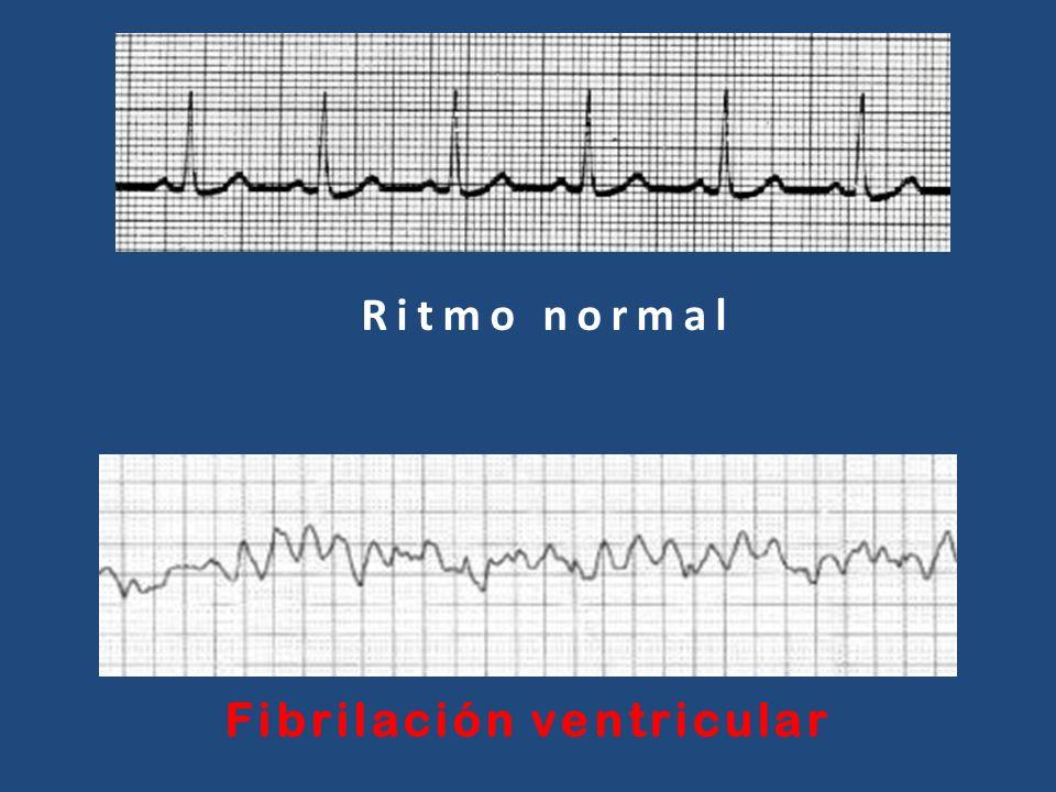 Ritmo normal Fibrilación ventricular