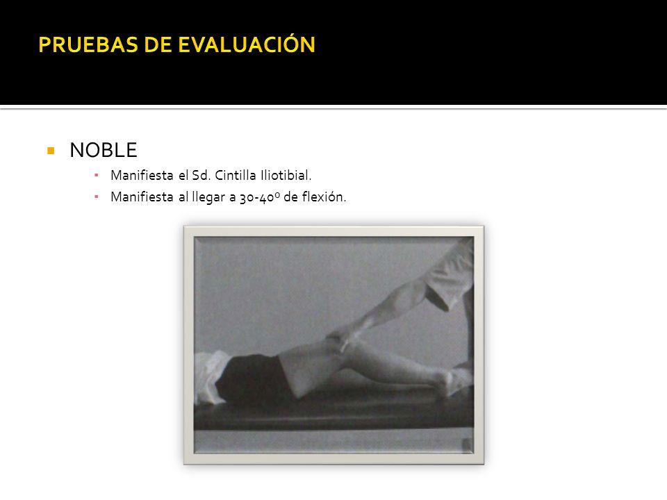 NOBLE Manifiesta el Sd. Cintilla Iliotibial. Manifiesta al llegar a 30-40º de flexión.