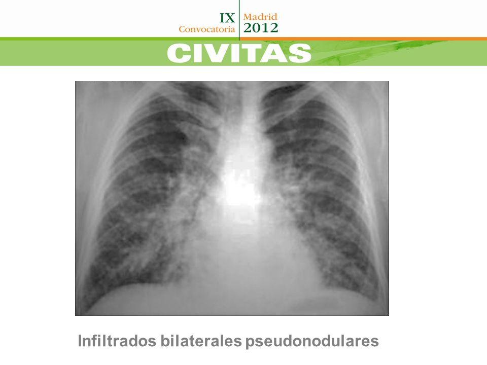 Klebsiella Pneumoniae NO MUESTRAS PARA CMV BONO (histología) BRONCOSCOPIA GANCICLOVIR (10 Días) ATB AMPLIO ESPECTRO CTCDS EVEROLIMUS + FK +