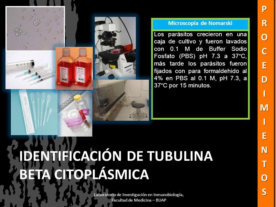 IDENTIFICACIÓN DE TUBULINA BETA CITOPLÁSMICA Microscopia de Nomarski Los parásitos crecieron en una caja de cultivo y fueron lavados con 0.1 M de Buff
