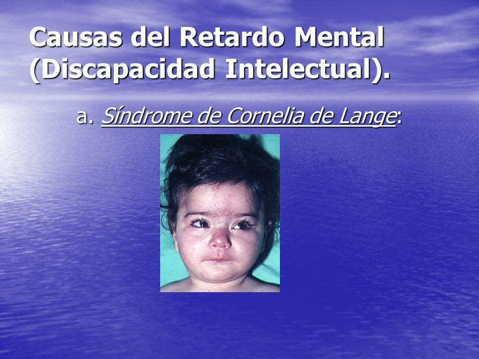 Causas del Retardo Mental (Discapacidad Intelectual). a. Síndrome de Cornelia de Lange: