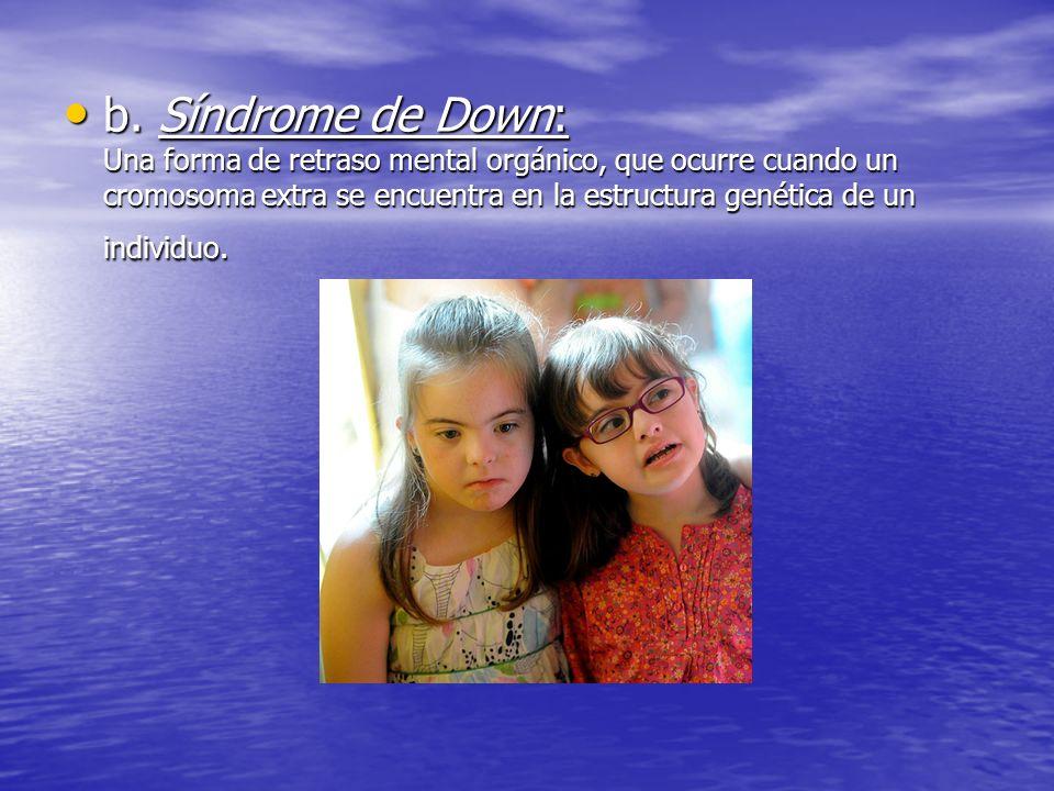 b. Síndrome de Down: Una forma de retraso mental orgánico, que ocurre cuando un cromosoma extra se encuentra en la estructura genética de un individuo