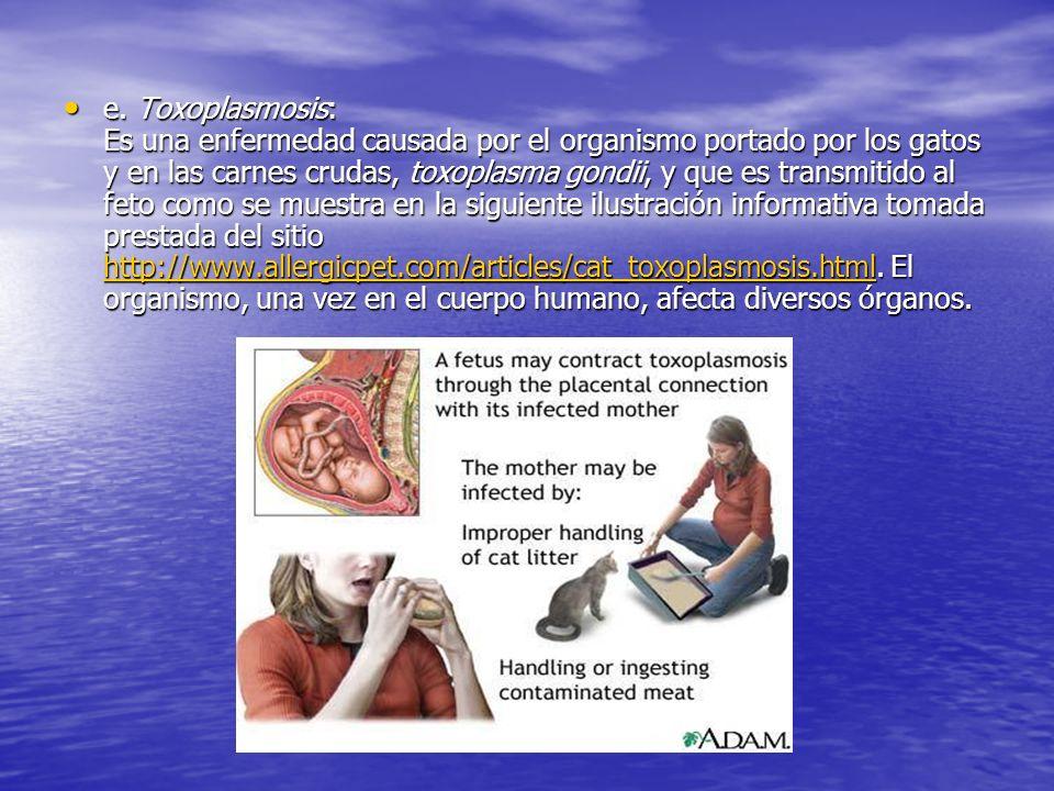e. Toxoplasmosis: Es una enfermedad causada por el organismo portado por los gatos y en las carnes crudas, toxoplasma gondii, y que es transmitido al
