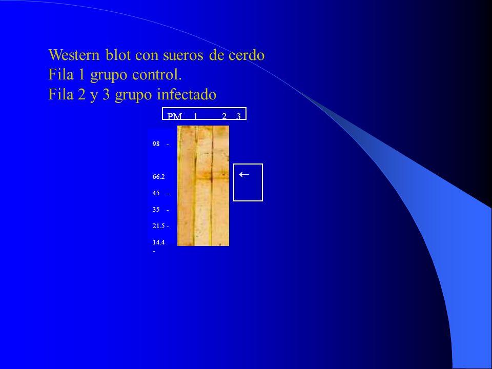 PM Tx 24 26 18 A B 98 - 66.2 - 45 - 35 - 21.5 - 14.4 - Wester –blot de los tubos seleccionados, revelado con suero hiperinmune.