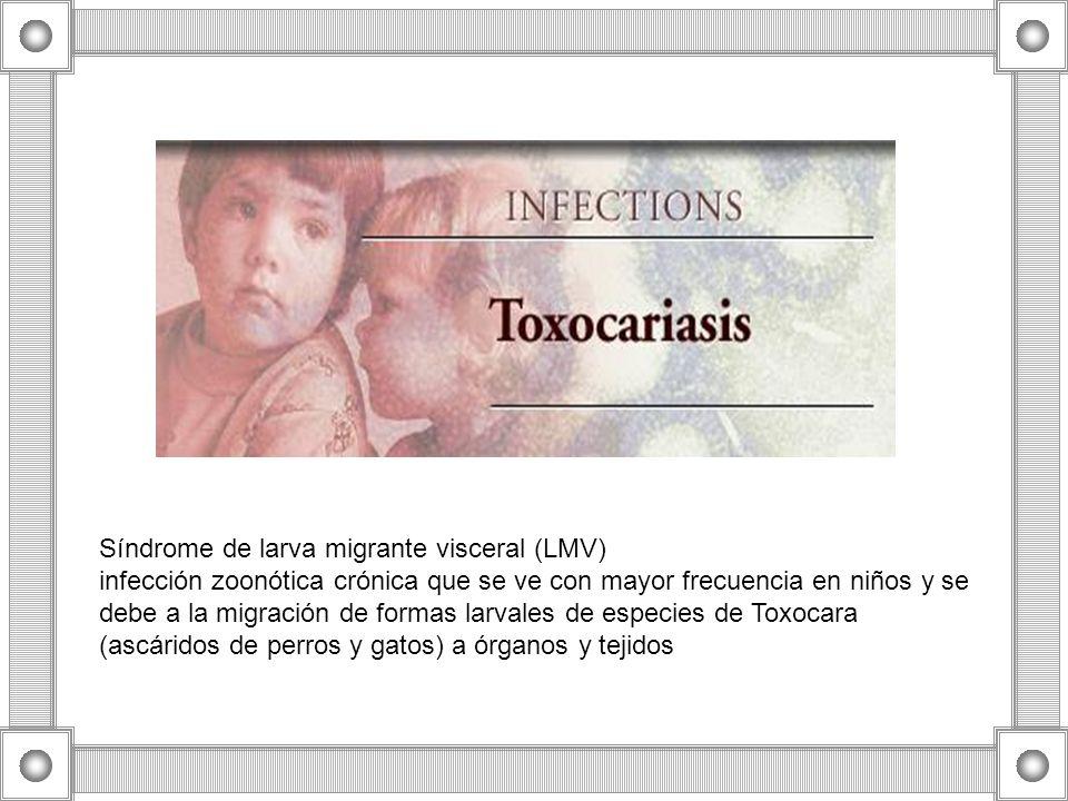 Síndrome de larva migrante visceral (LMV) infección zoonótica crónica que se ve con mayor frecuencia en niños y se debe a la migración de formas larva