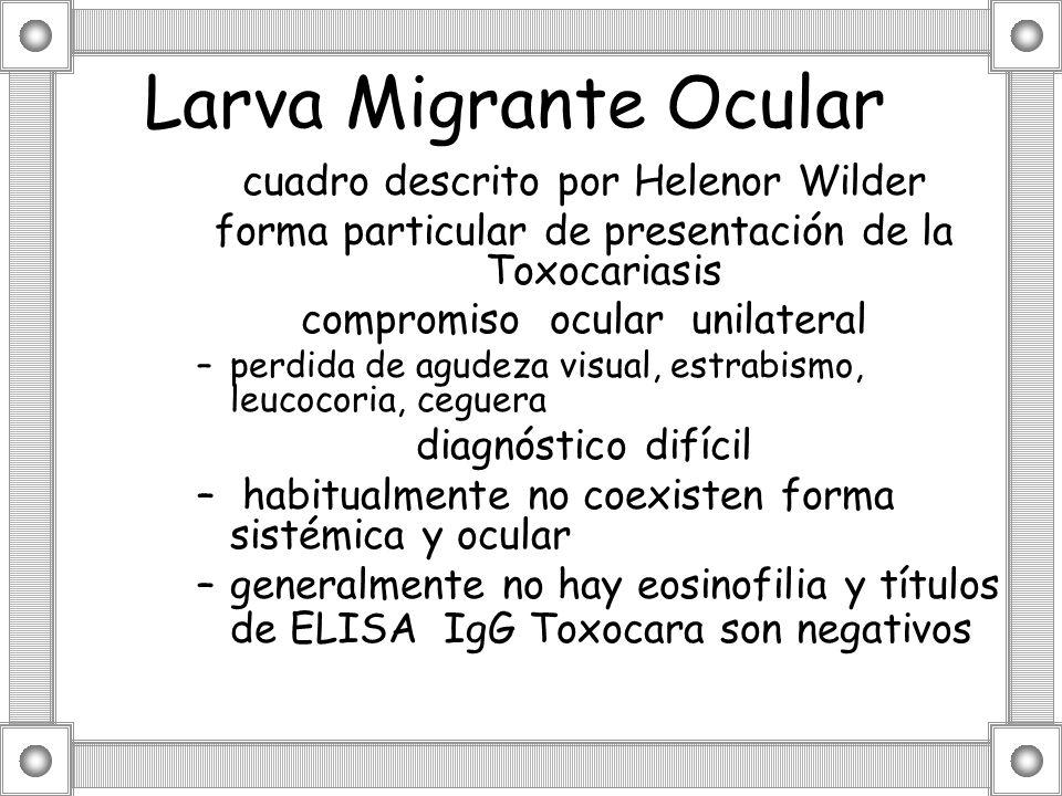Larva Migrante Ocular cuadro descrito por Helenor Wilder forma particular de presentación de la Toxocariasis compromiso ocular unilateral –perdida de