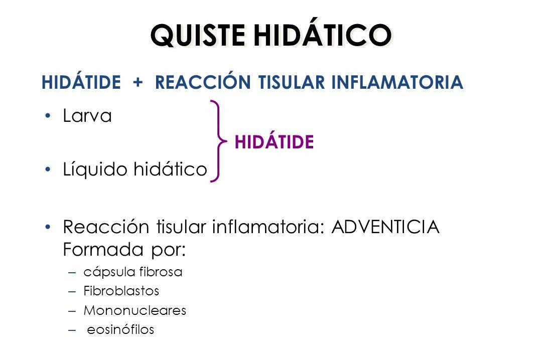 QUISTE HIDÁTICO Larva Líquido hidático Reacción tisular inflamatoria: ADVENTICIA Formada por: – cápsula fibrosa – Fibroblastos – Mononucleares – eosinófilos HIDÁTIDE + REACCIÓN TISULAR INFLAMATORIA HIDÁTIDE