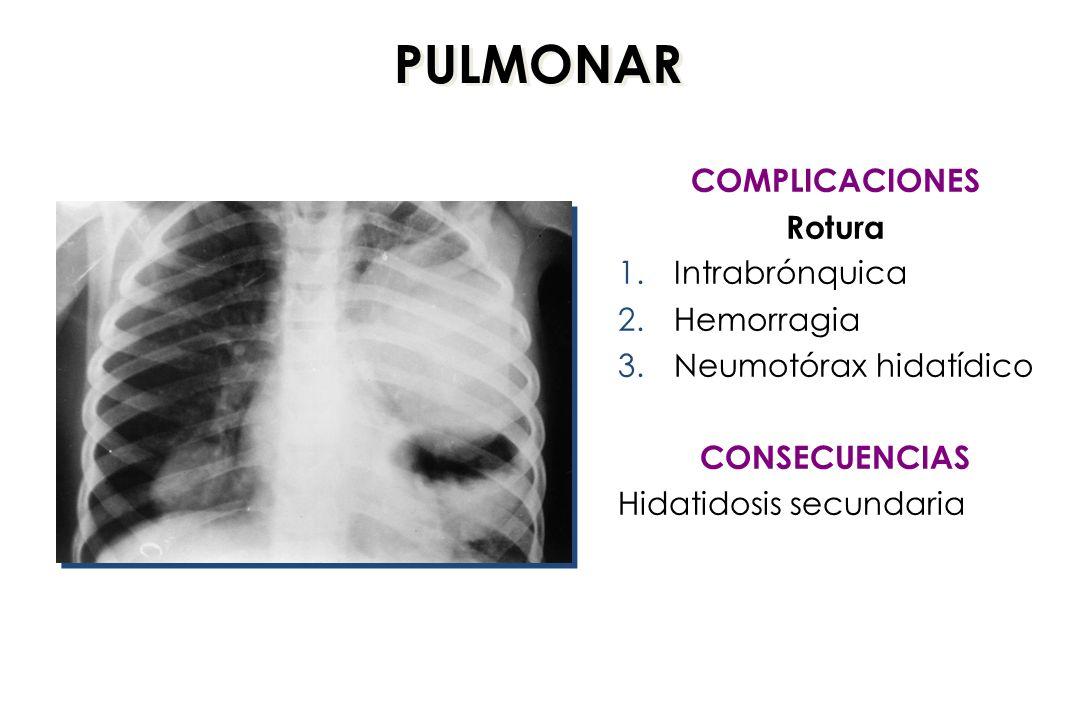 PULMONAR COMPLICACIONES Rotura 1.Intrabrónquica 2.Hemorragia 3.Neumotórax hidatídico CONSECUENCIAS Hidatidosis secundaria