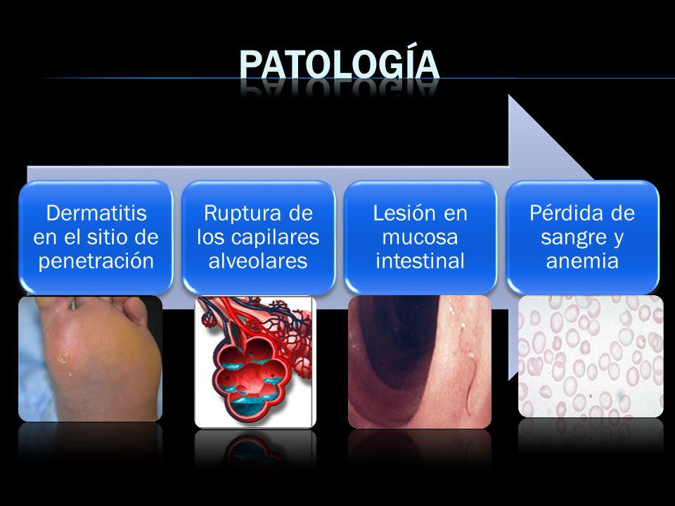 Dermatitis en el sitio de penetración Ruptura de los capilares alveolares Lesión en mucosa intestinal Pérdida de sangre y anemia