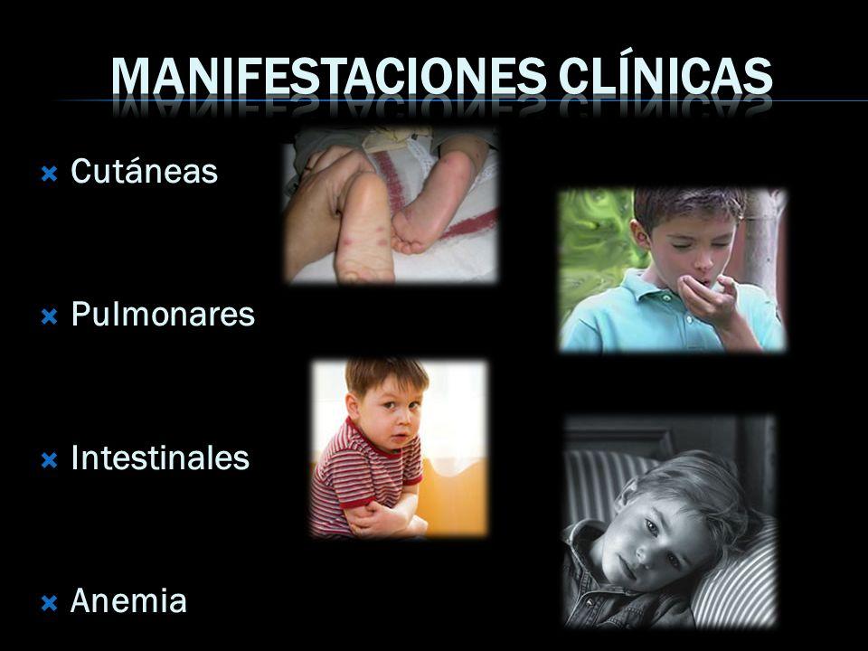 Cutáneas Pulmonares Intestinales Anemia