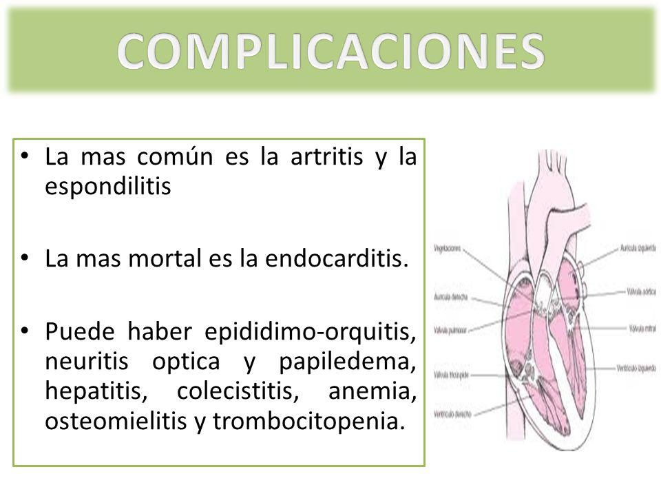 La mas común es la artritis y la espondilitis La mas mortal es la endocarditis. Puede haber epididimo-orquitis, neuritis optica y papiledema, hepatiti