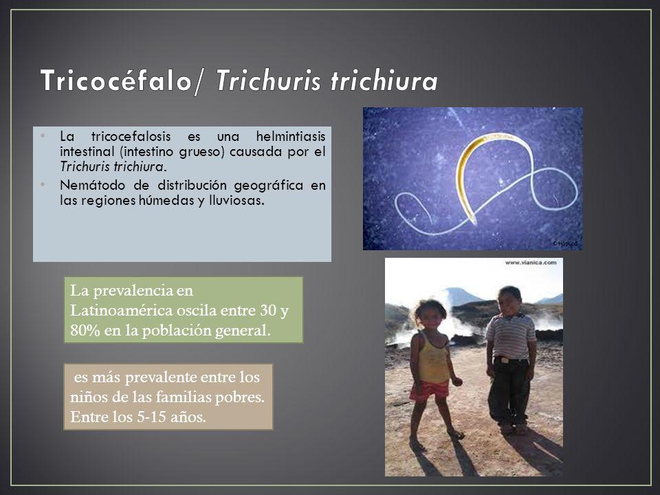 La tricocefalosis es una helmintiasis intestinal (intestino grueso) causada por el Trichuris trichiura. Nemátodo de distribución geográfica en las reg