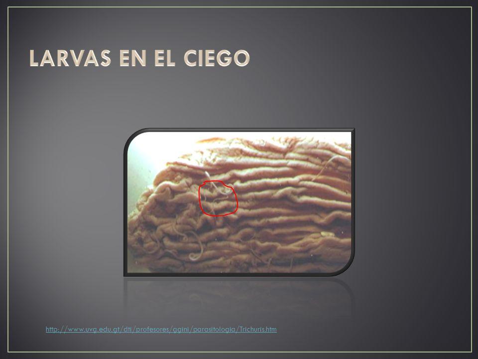 http://www.uvg.edu.gt/dti/profesores/ggini/parasitologia/Trichuris.htm