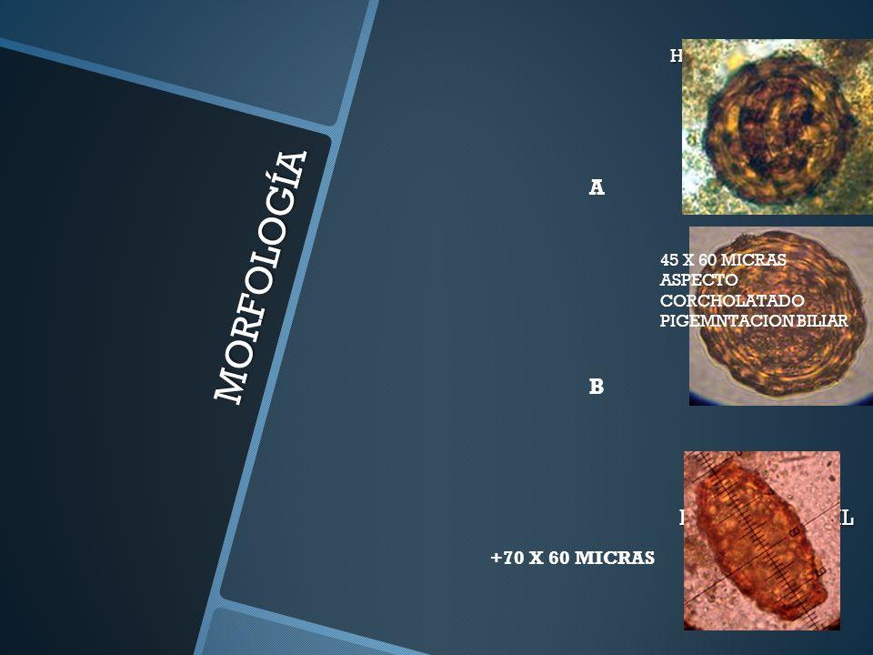 MORFOLOGÍA HUEVOS. EMBRIONADO (A)Y NO EMBRIONADO (B) HUEVO INFÉRTIL A B 45 X 60 MICRAS ASPECTO CORCHOLATADO PIGEMNTACION BILIAR +70 X 60 MICRAS
