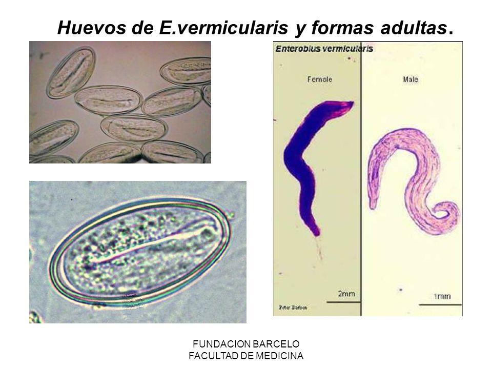 FUNDACION BARCELO FACULTAD DE MEDICINA Huevos de E.vermicularis y formas adultas.