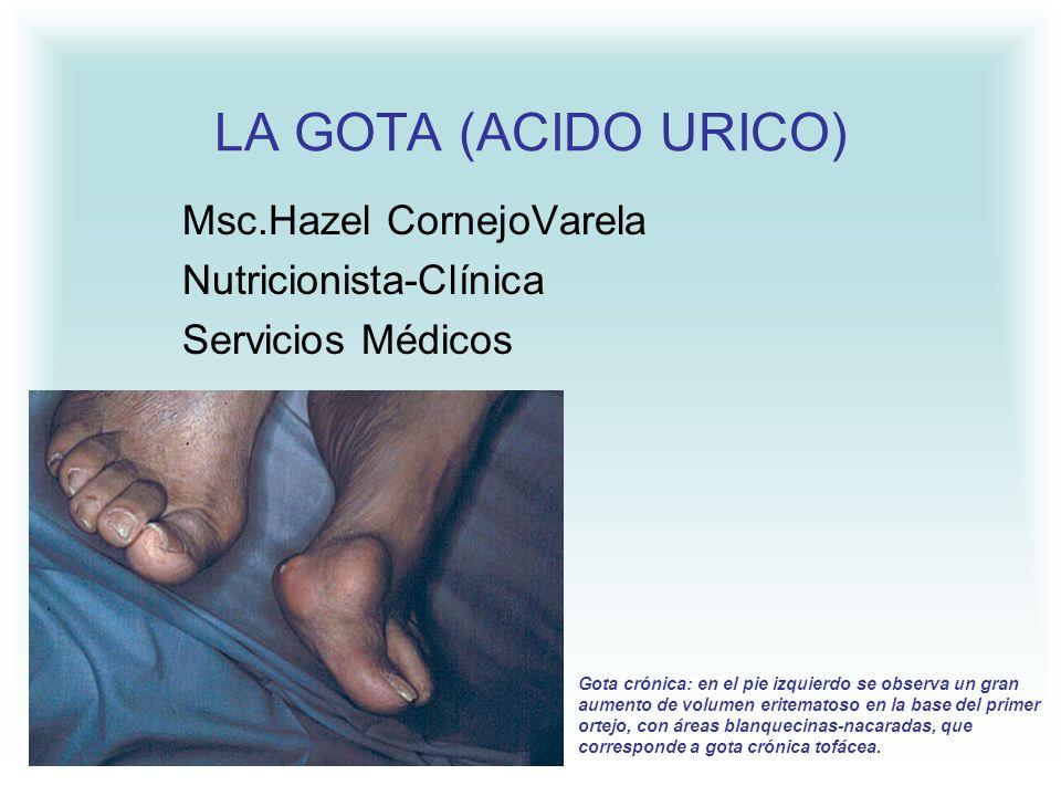 LA GOTA (ACIDO URICO) Msc.Hazel CornejoVarela Nutricionista-Clínica Servicios Médicos Gota crónica: en el pie izquierdo se observa un gran aumento de