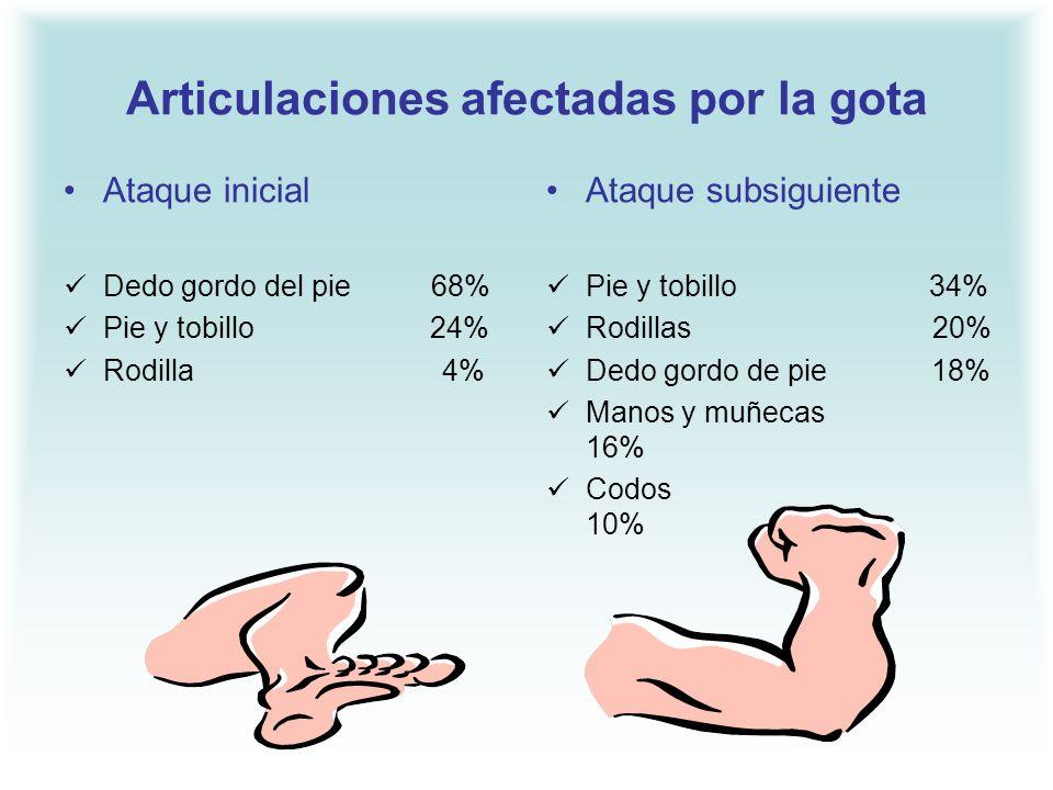 Articulaciones afectadas por la gota Ataque inicial Dedo gordo del pie 68% Pie y tobillo 24% Rodilla 4% Ataque subsiguiente Pie y tobillo 34% Rodillas