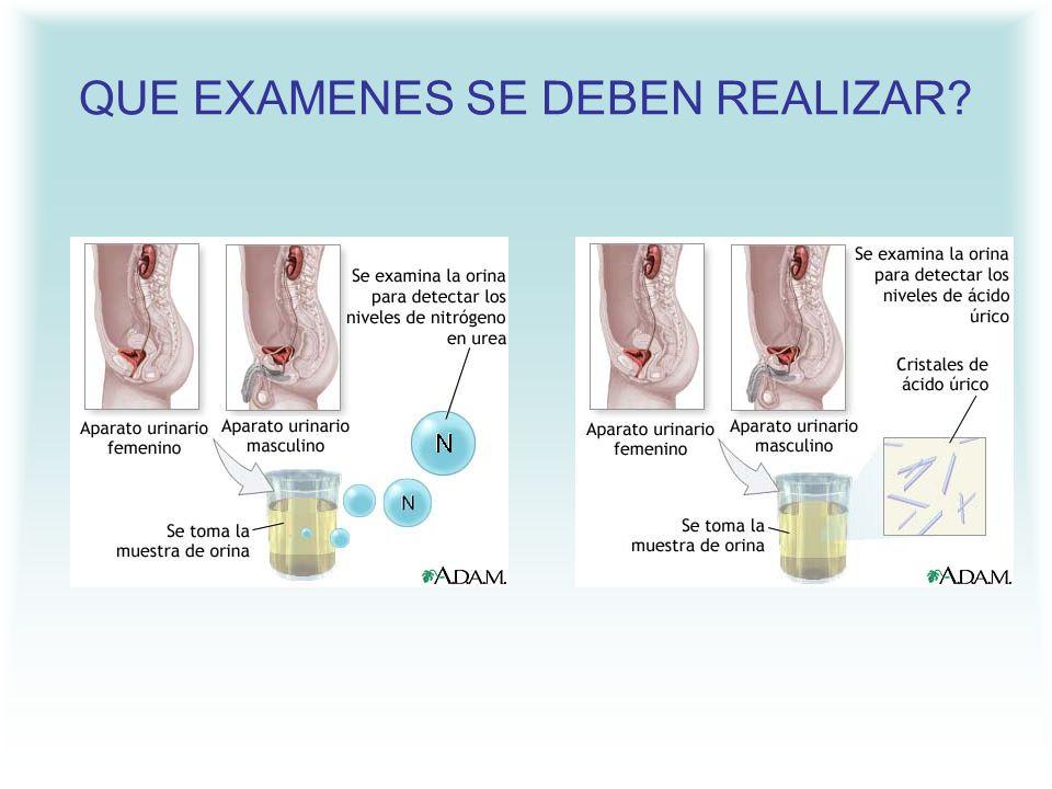 Al aumentar el ácido úrico se produce depósito, en forma de cristales afilados en las articulaciones, sobre todo de partes inferiores del cuerpo (pies y piernas), generalmente una sola articulación..